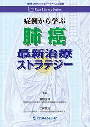 Case Library Series 症例から学ぶ 肺癌最新治療ストラテジー