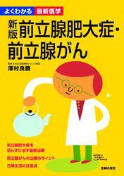 新版 前立腺肥大症・前立腺がん(よくわかる最新医学)