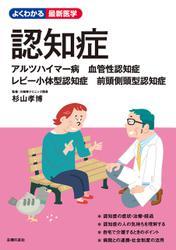 認知症 アルツハイマー病 血管性認知症
